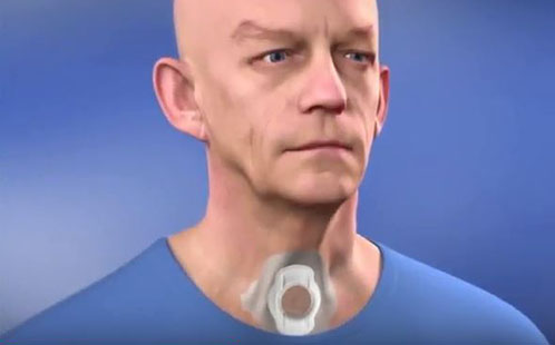 Discovery to alter the path of bionic voice research worldwide