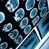 Neurological basis of genetic diseases_Macefield